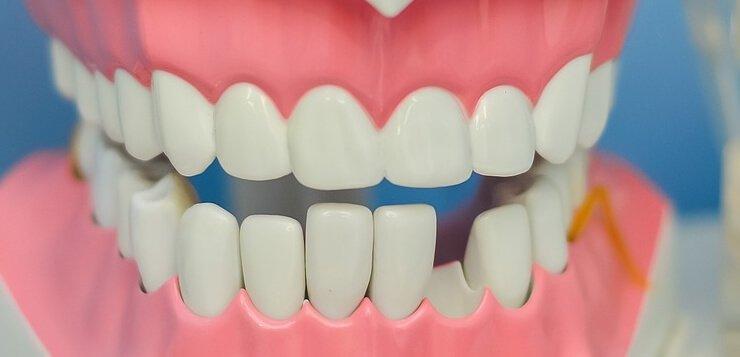 Model zuba kod zubara