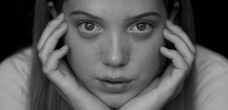 Depresija povodom akni